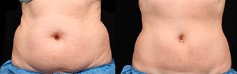 alternativa liposuccion en malaga