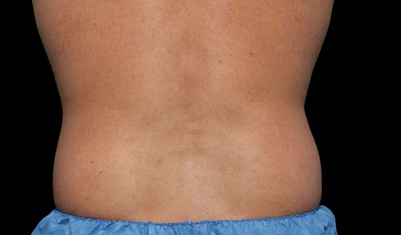 eliminar grasa de abdomen sin cirugia