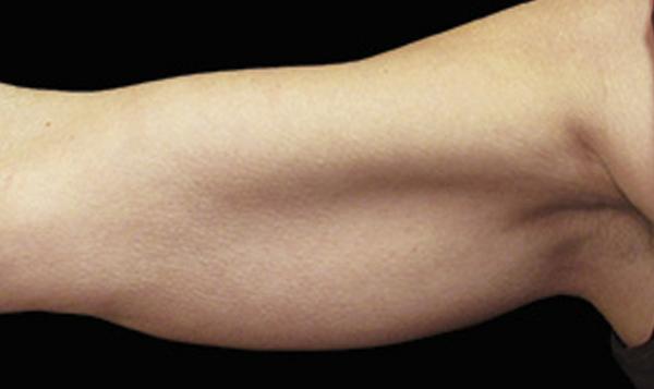eliminar grasa de brazos sin cirugia malaga