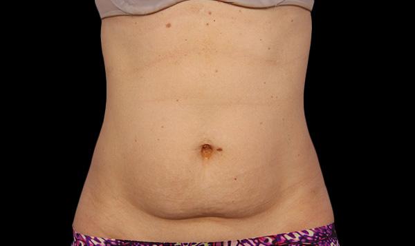eliminar grasa adiposa en abdomen coolsculpting en malaga