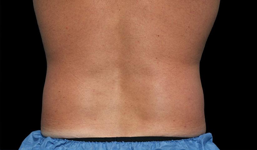 liposuccion sin cirugia en malaga