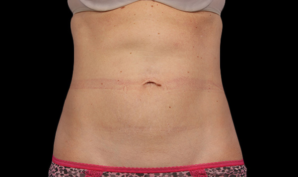 eliminar grasa en abdomen sin cirugia malaga
