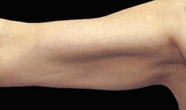 eliminacion de grasa en brazos con coolsculpting
