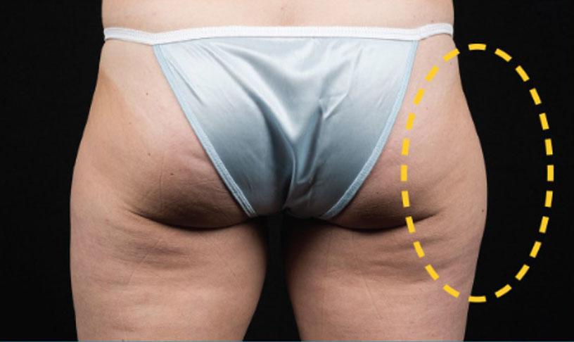 eliminar grasa gluteos sin cirugia malaga